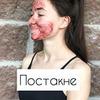 реклама на блоге Блог Акне